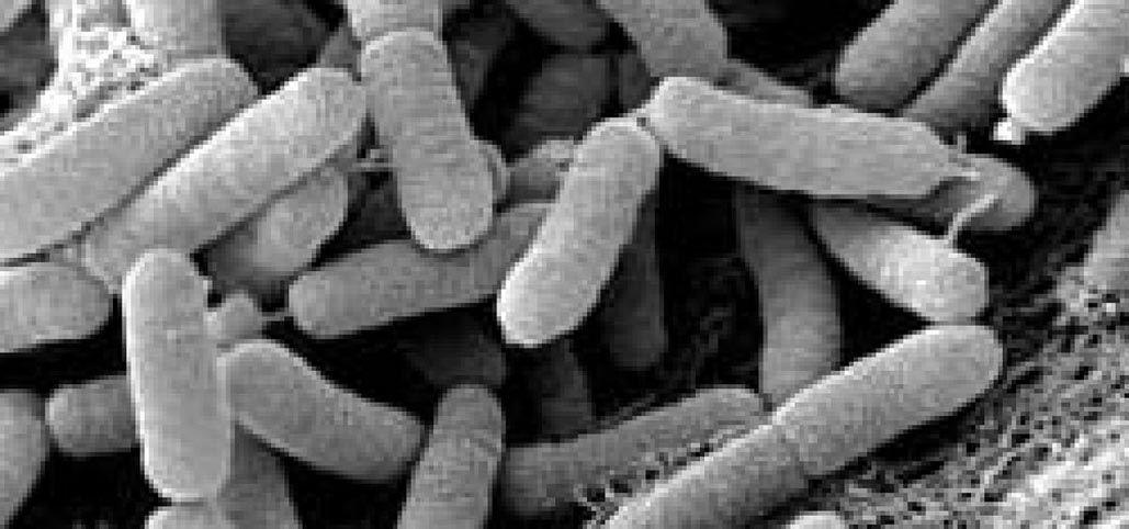 Noroeste, Río Mula y Altiplano serían las comarcas más afectados por la bacteria del olivo
