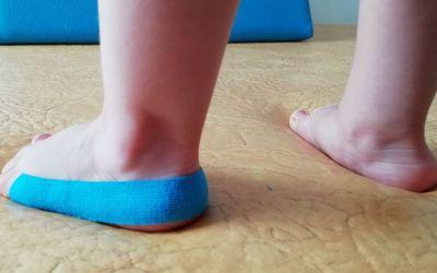 Aplicaciones del vendaje neuromuscular en las alteraciones del desarrollo motor en pediatría