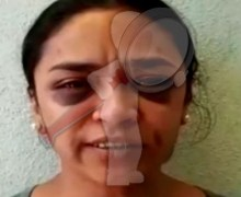Periodista iba a ser violada, pide ayuda a policías y la golpean