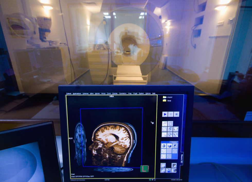 Imagen en 3D de un cerebro en un laboratorio médico