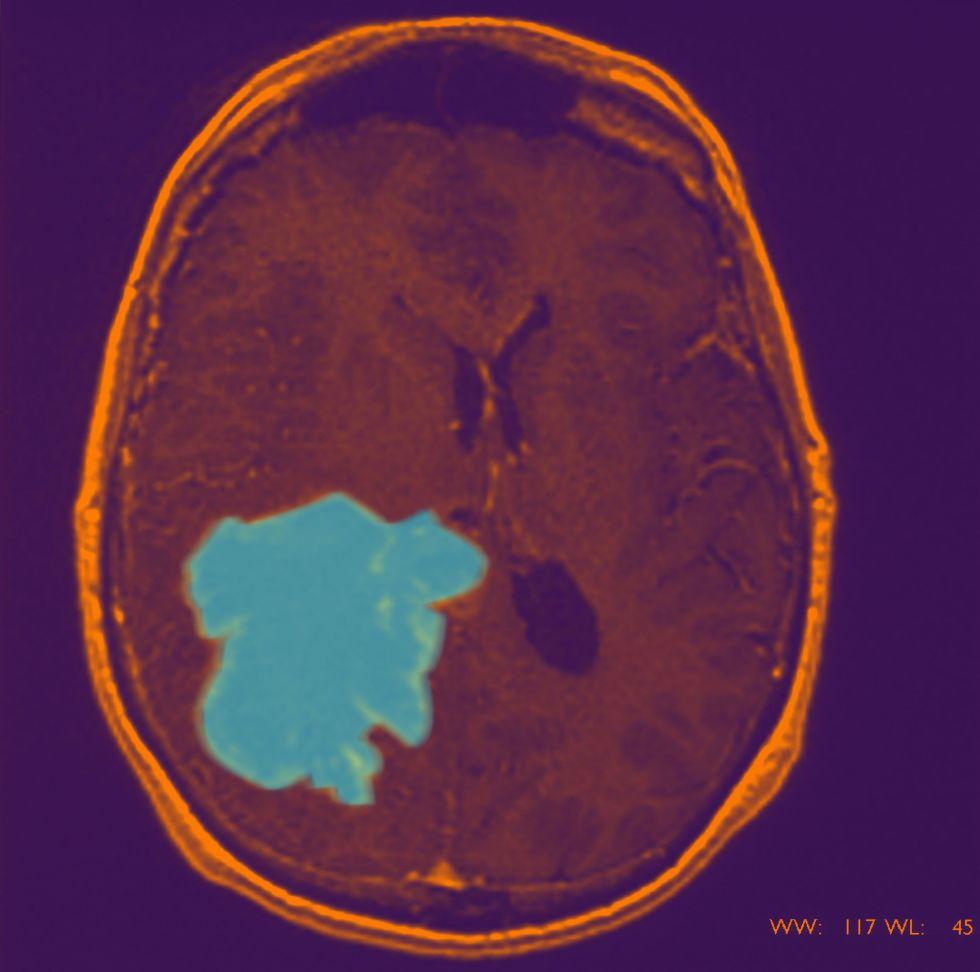 Imagen coloreada de glioblastoma. Con células diseminadas que han invadido la región cortical