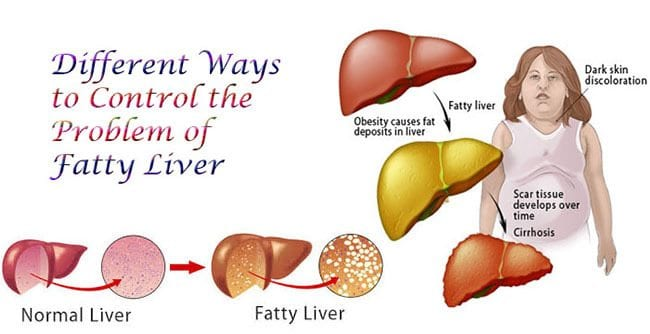 Wellness Overview: Non-Alcoholic Fatty Liver Disease - El Paso Chiropractor