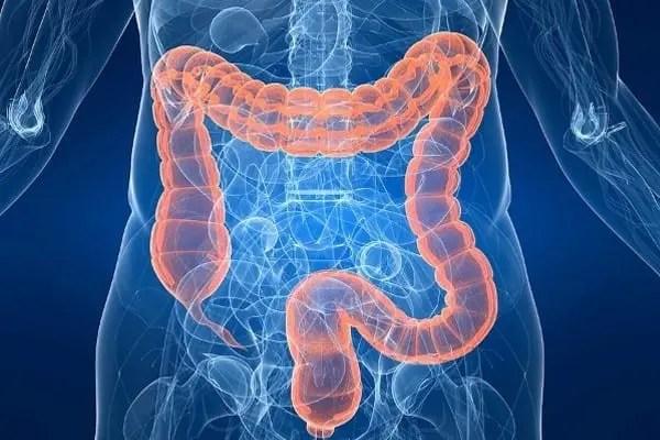 Gastrointestinal diseases explained using a colon diagram