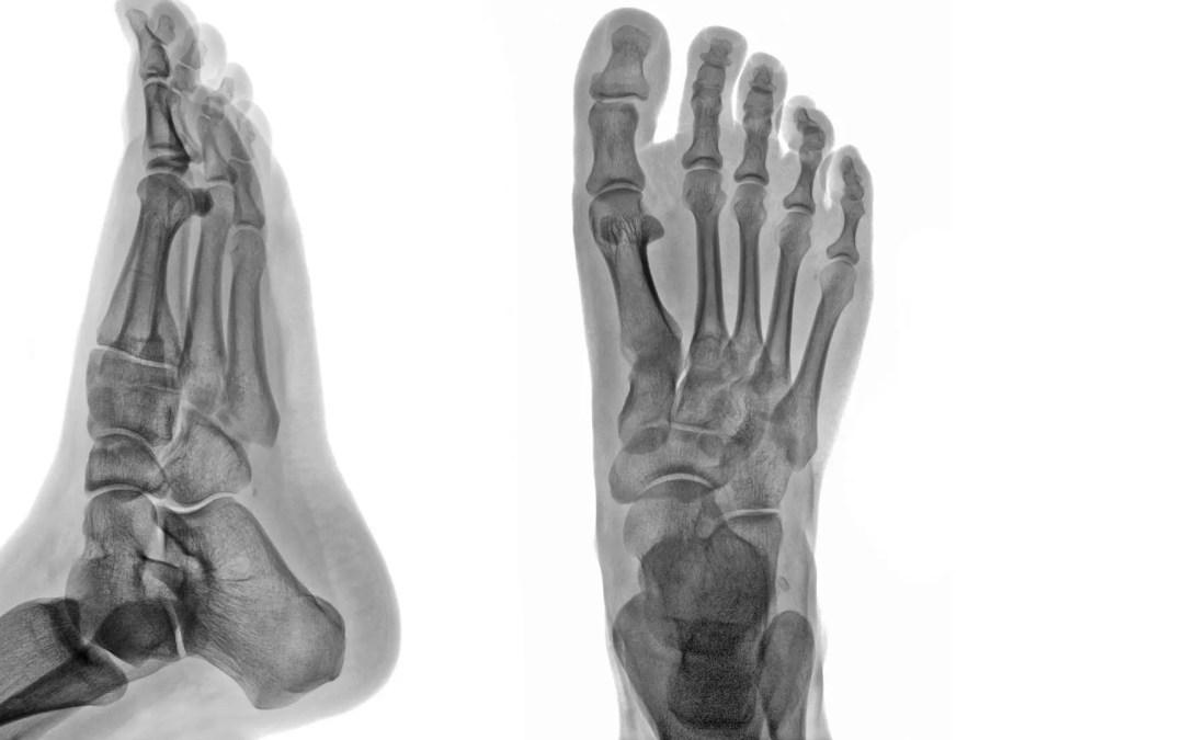 Ankle & Foot Diagnostic Imaging Arthritis & Trauma I | El Paso, TX.