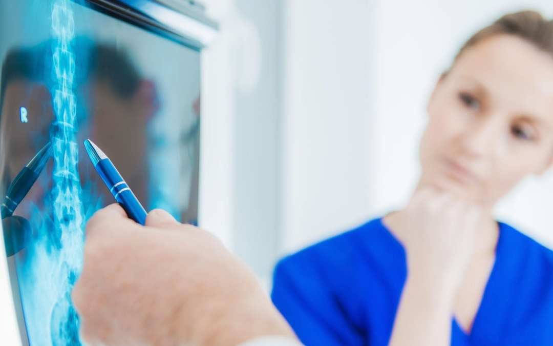 Why Chiropractors Use X-Rays As A Diagnostic Tool For Treatment