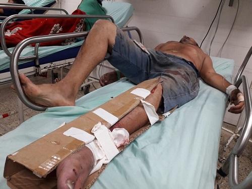 Las lesiones del hombre presuntamente parecen ser producto de una riña según comentan circulantes del hospital.