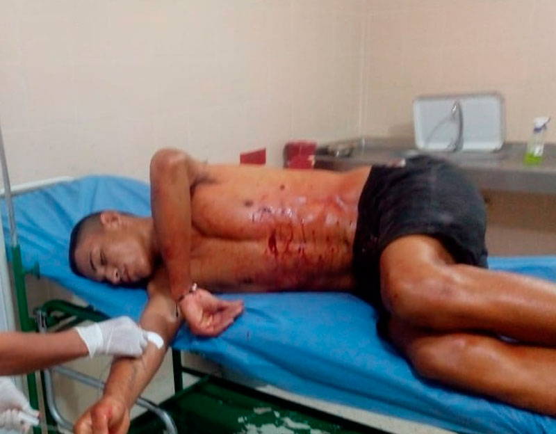 Uno de los lesionados cuando fue llevado al hospital local.