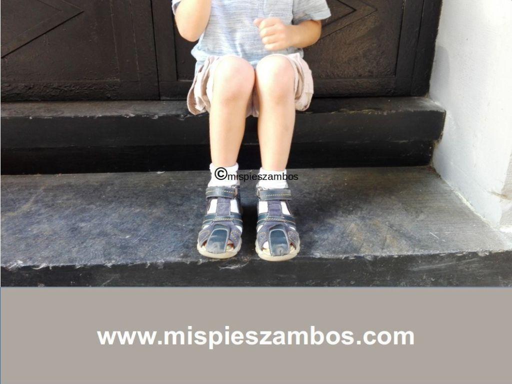 Foto de los pies de mi hijo después de la sesión de fisioterapia