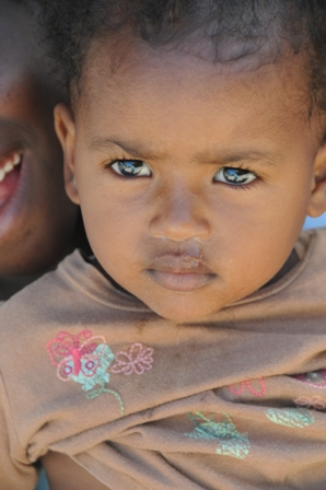 Mud-hat, the youngest in Anidan. She has already undergone one open-heart surgery and is awaiting a second one
