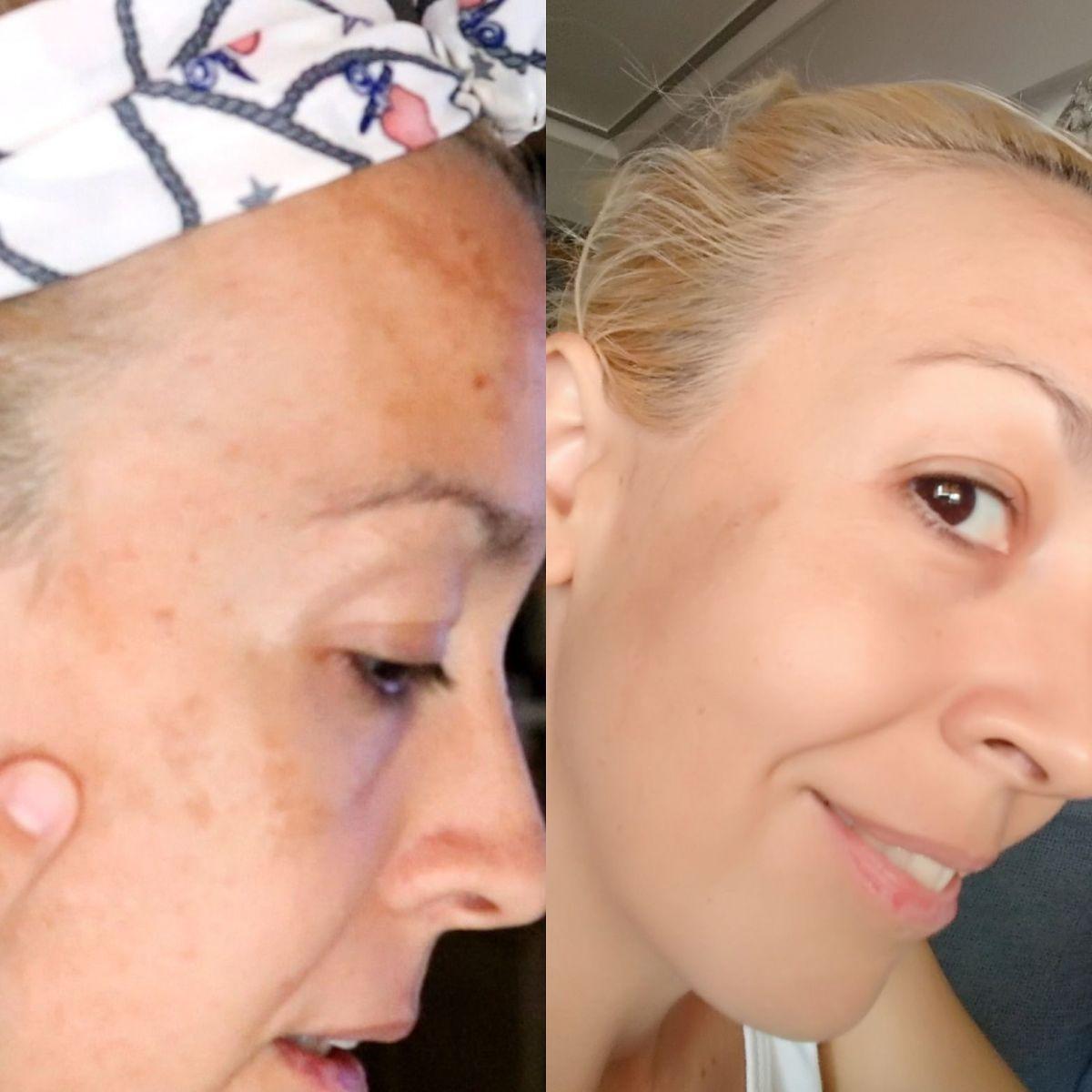 Cómo eliminar las manchas o paños de la piel