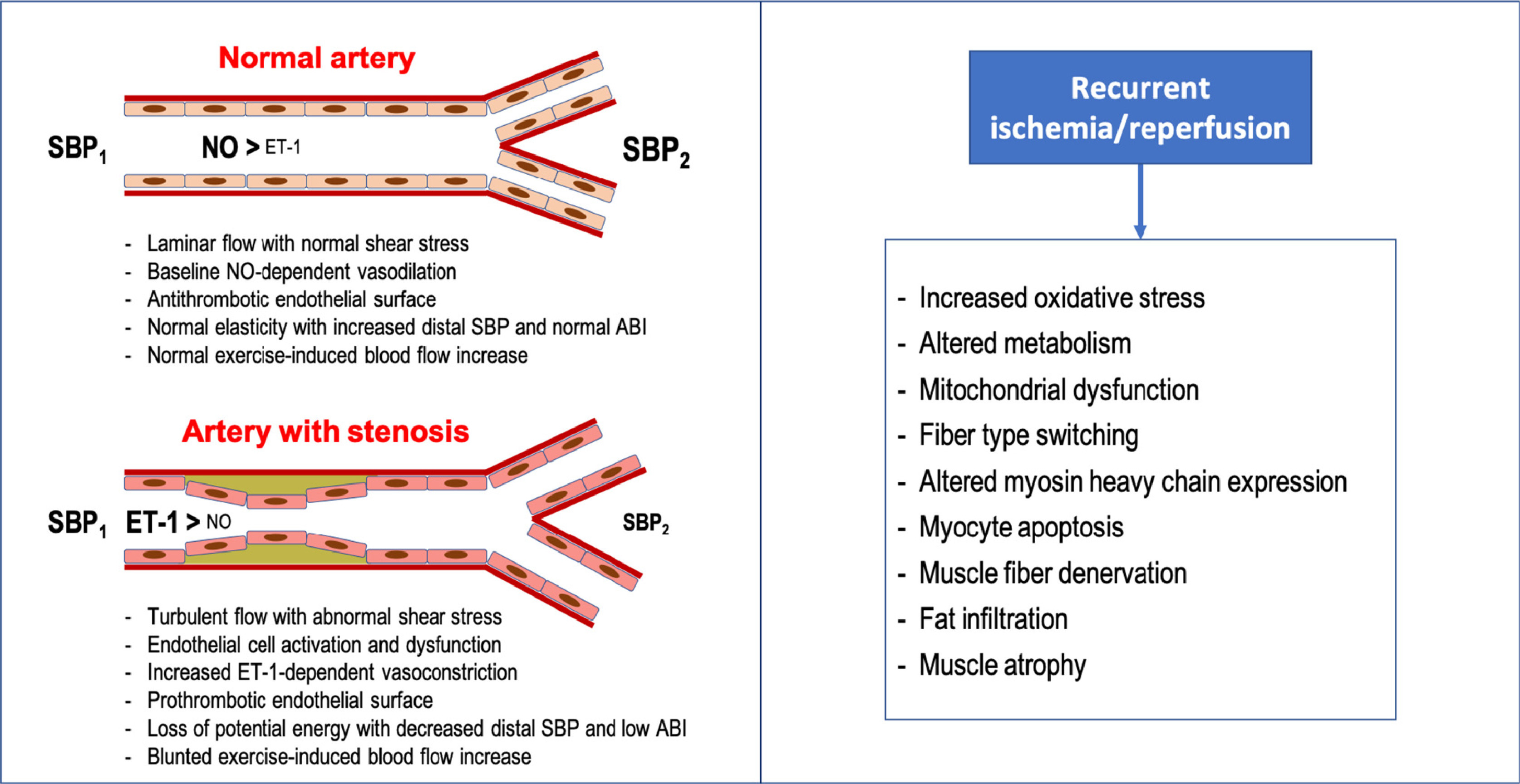 Peripheral Artery Disease Past Present And Future