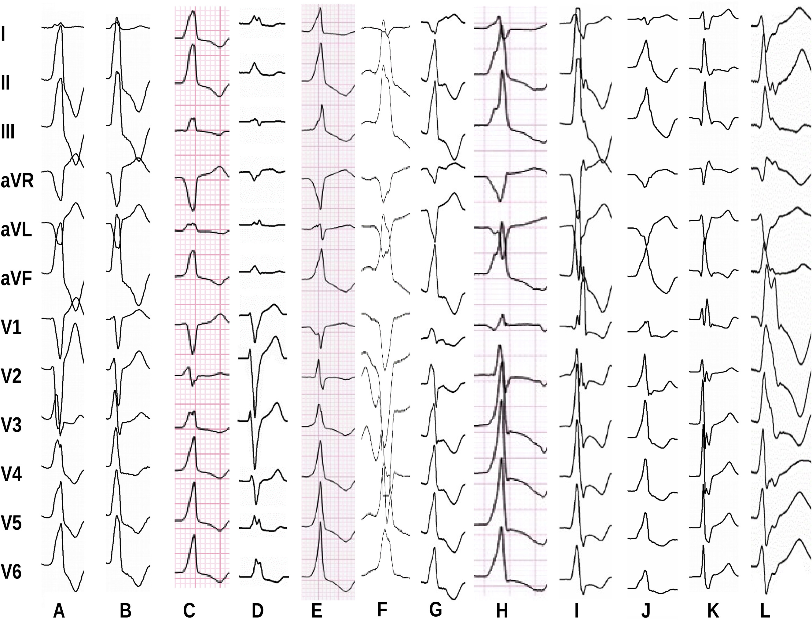 How To Use The 12 Lead Ecg To Predict The Site Of Origin