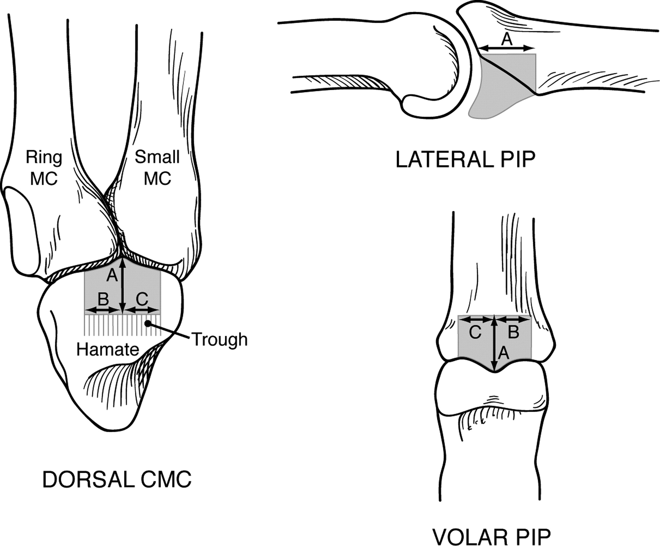Hemi Hamate Arthroplasty Provides Functional