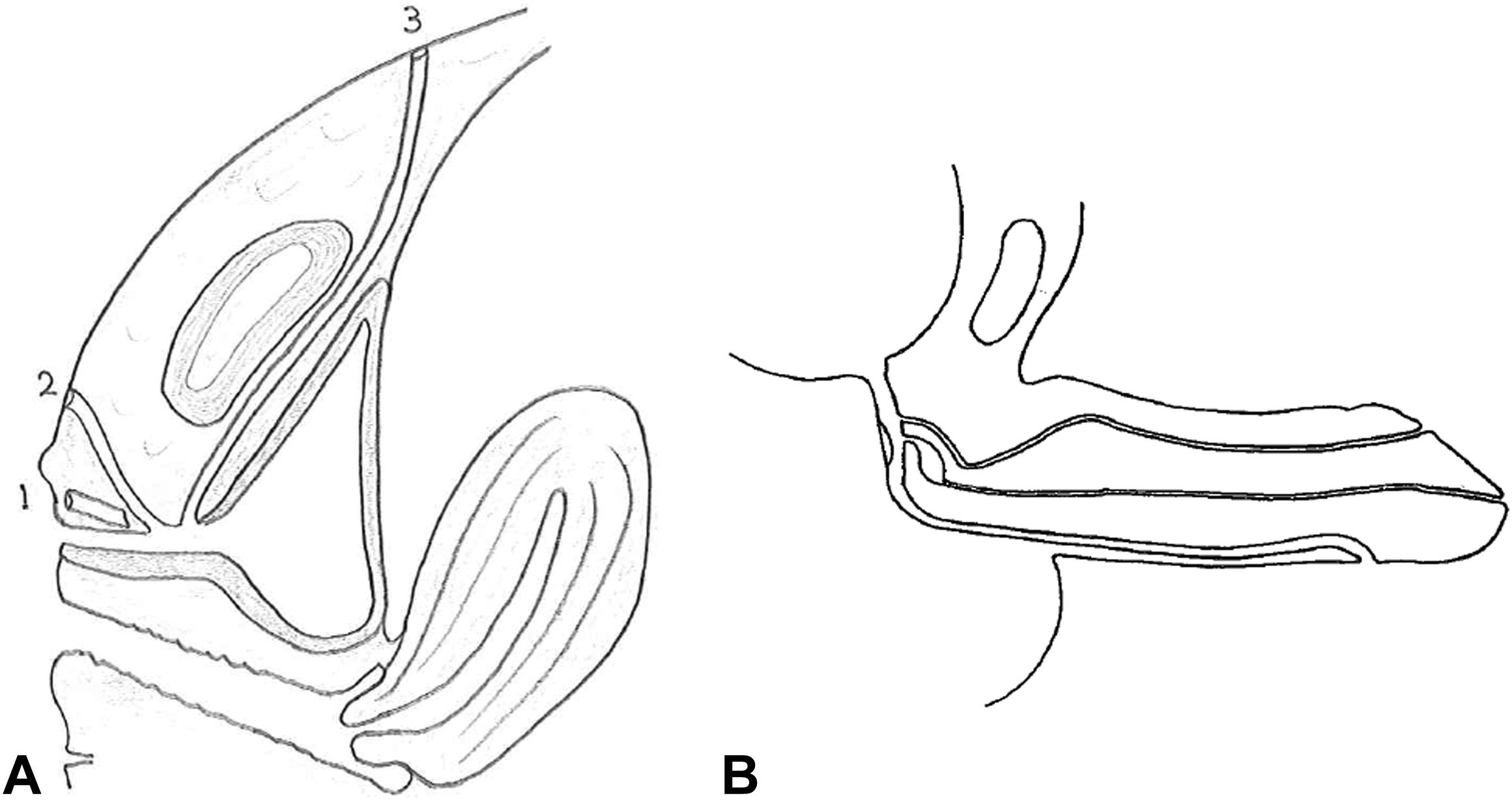 Congenital Prepubic Sinus In An Adolescent Female A Case