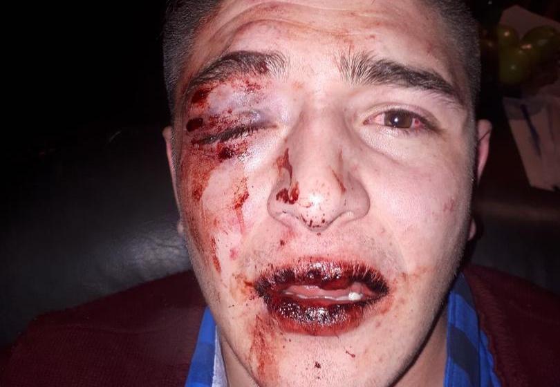 Patovicas y policías le dan una brutal paliza a un joven en un boliche