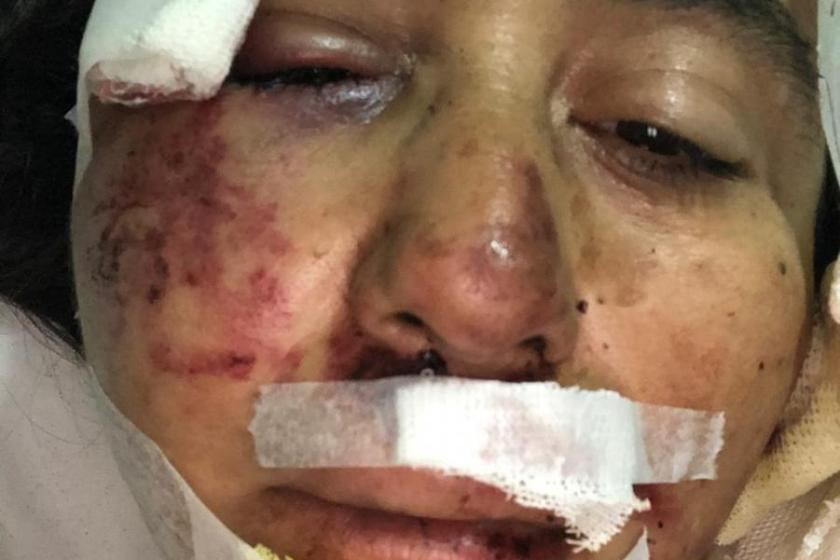MOTOCHORROS: La golpearon salvajemente y, en la comisaría para no incrementar los indices de inseguridad, se negaron a tomar la denuncia
