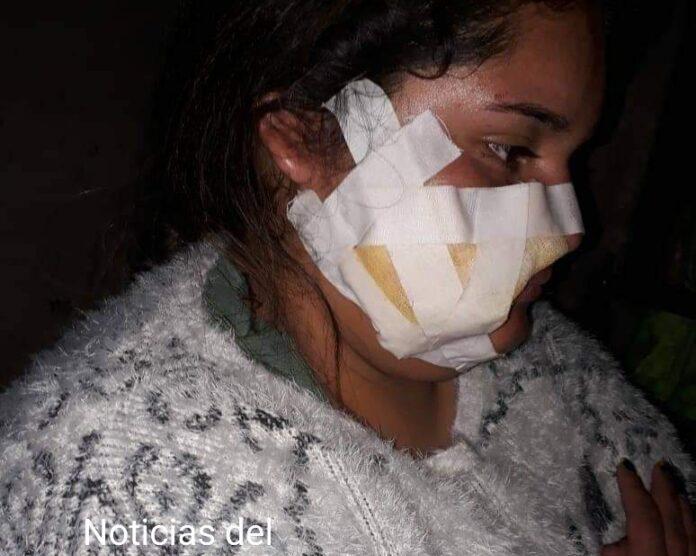 Para robarle el celular, le hicieron cortes en toda la cara, ocurrió en Aguilares