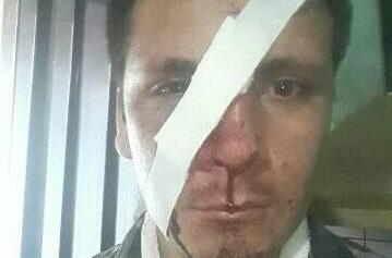 ALDERETES: Ladrones atacaron con un machete a un joven para robarle la moto