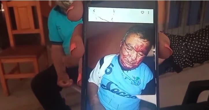 Asaltantes golpearon y robaron a héroe de Malvinas en Delfín Gallo
