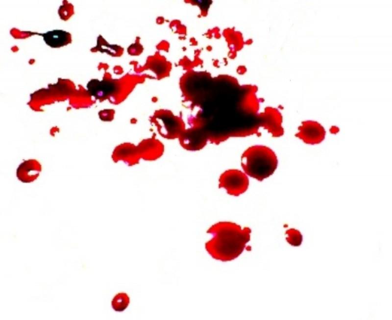 sueños con sangre
