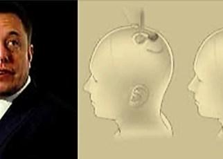 Elon Musk y su chip cerebral Neuralink