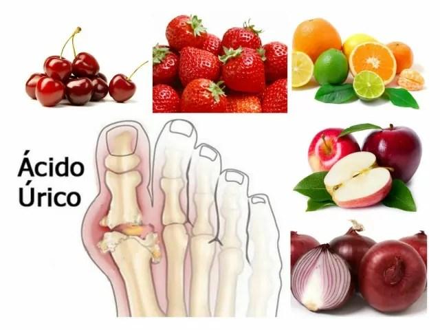 las espinacas producen acido urico remedios naturales caseros para la gota dolores por acido urico alto