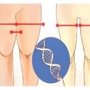 Aprenda como ELIMINAR os depósitos de gordura localizados nas coxas.