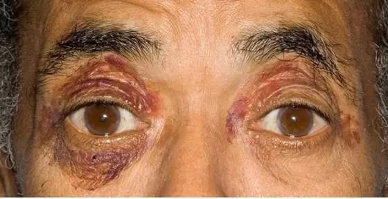 Insuficiência Cardíaca Congestiva Causas - amiloidose-min