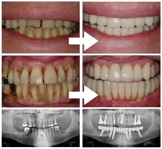 Periodontite tratamento : Implante dentário