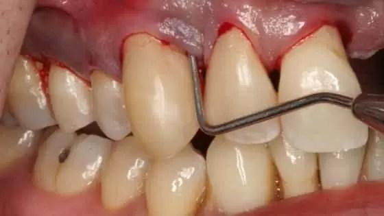 sintomas da periodontite