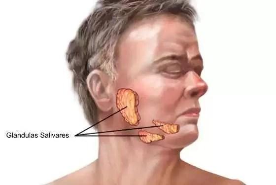 Como se pega caxumba e quais os sintomas?