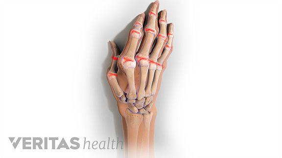 rheumatoid arthritis in the hand