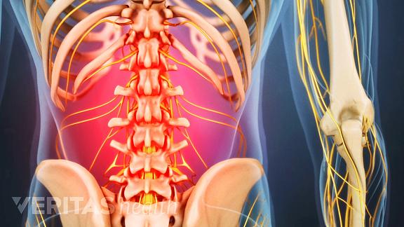 Causes of neck strain