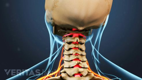 Cervical spine disorders.