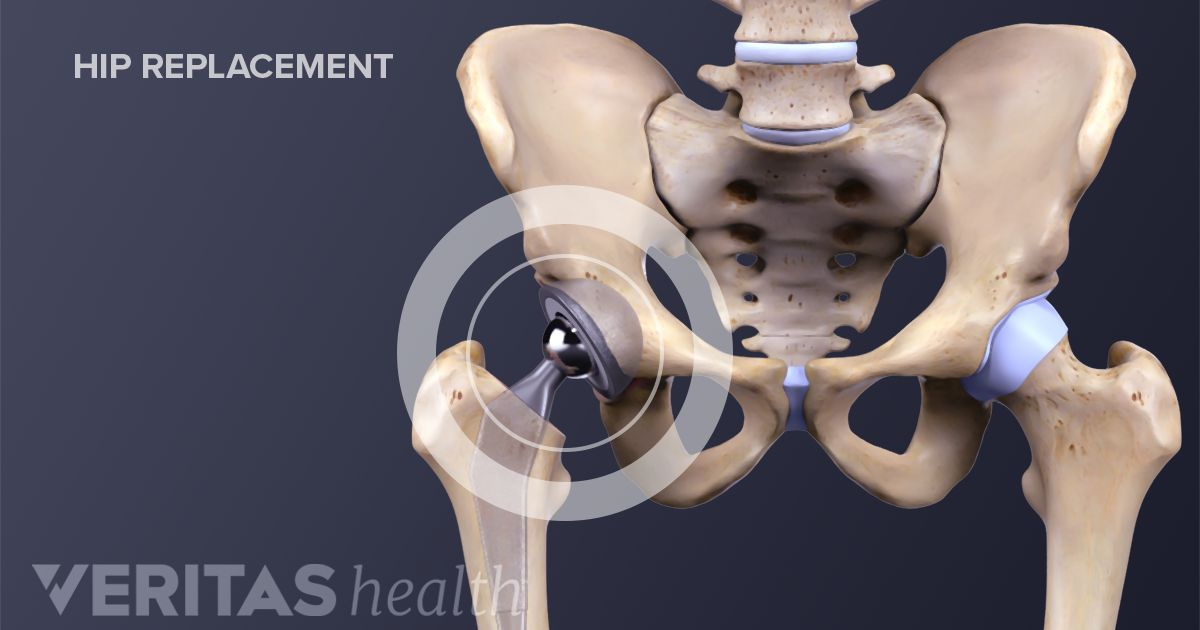 Joint Surgery Process Hip Replacement