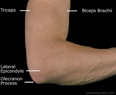 Elbow Injuries Emcage