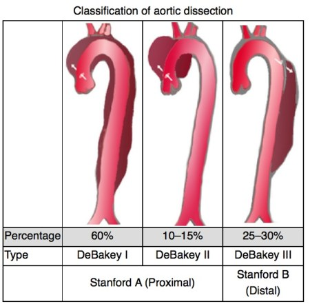 aortic-dissection-classification