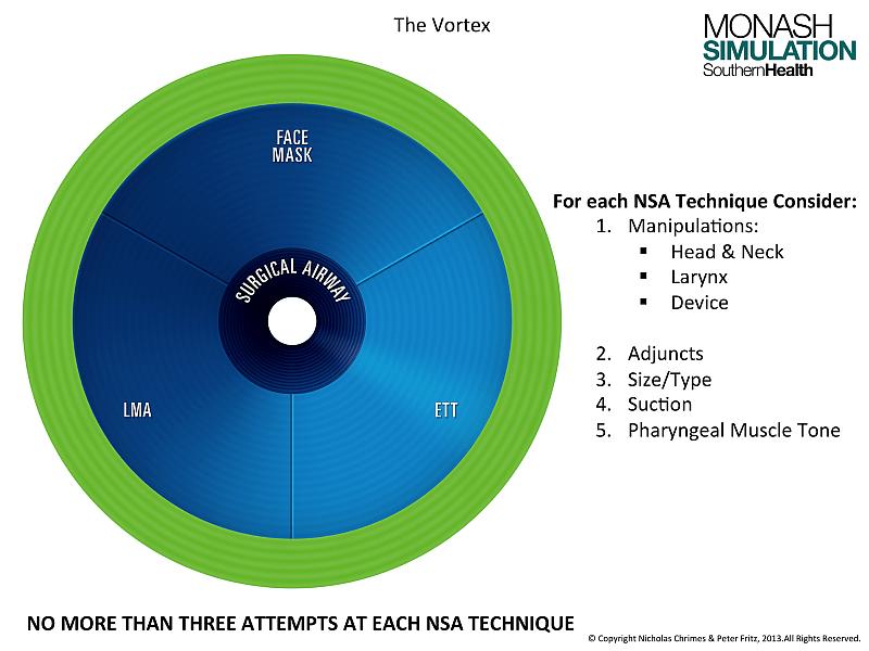 The Vortex Approach – Lma-a Wiring-diagram