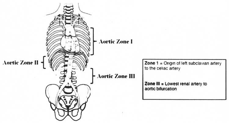 zones-of-aorta