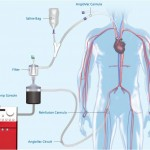 Angiovac-Vortex