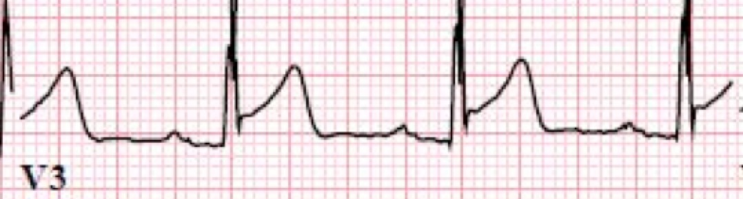 s wave which patient should get acute cath lab activation in mi
