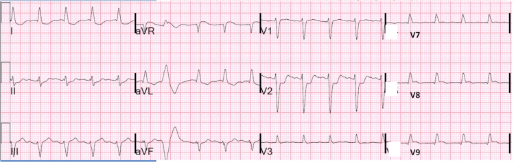 In this case, Posterior leads do not quite confirm posterior ST elevation