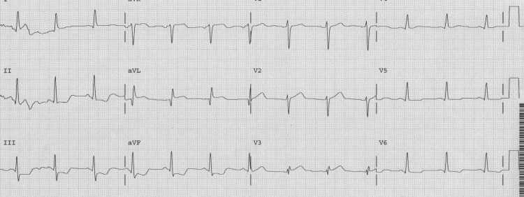 A first diagonal occlusion