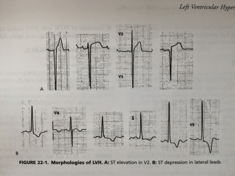 Here are some morphologies of false positive STE in LVH