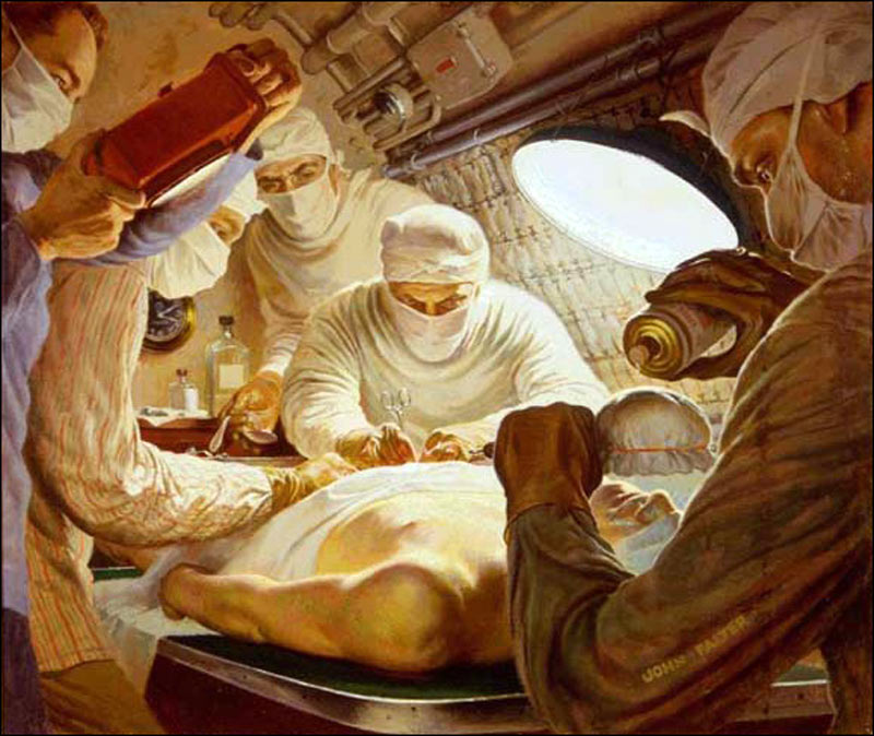 Appendectomy-On-USS-Seadragon