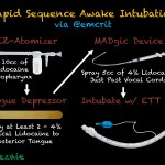 Podcast 194 – Definitive Emergent Awake Intubation with George Kovacs