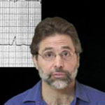 EMCrit Podcast 42: A phD in EKG with Steve Smith