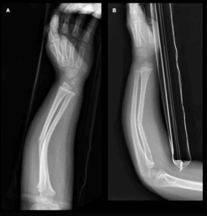 Greenstick Fracture  Definition, Causes and Treatment  (2018  Updated)