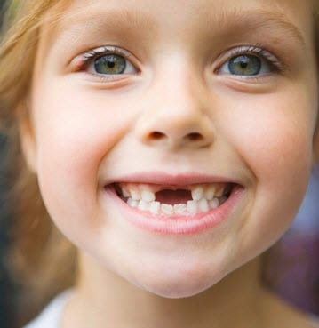Why does my child need their baby tooth removed?