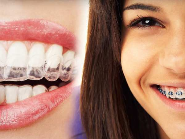 Does Invisalign® cost more than braces?